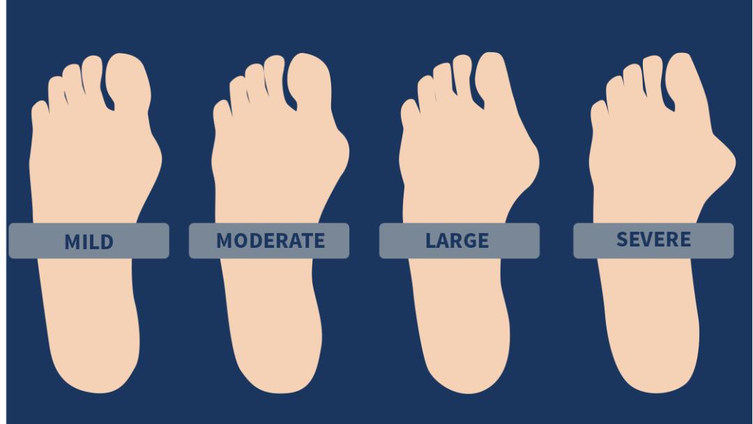 feet_bunions1.png